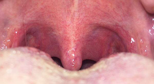 what-can-adults-eat-after-tonsillectomy